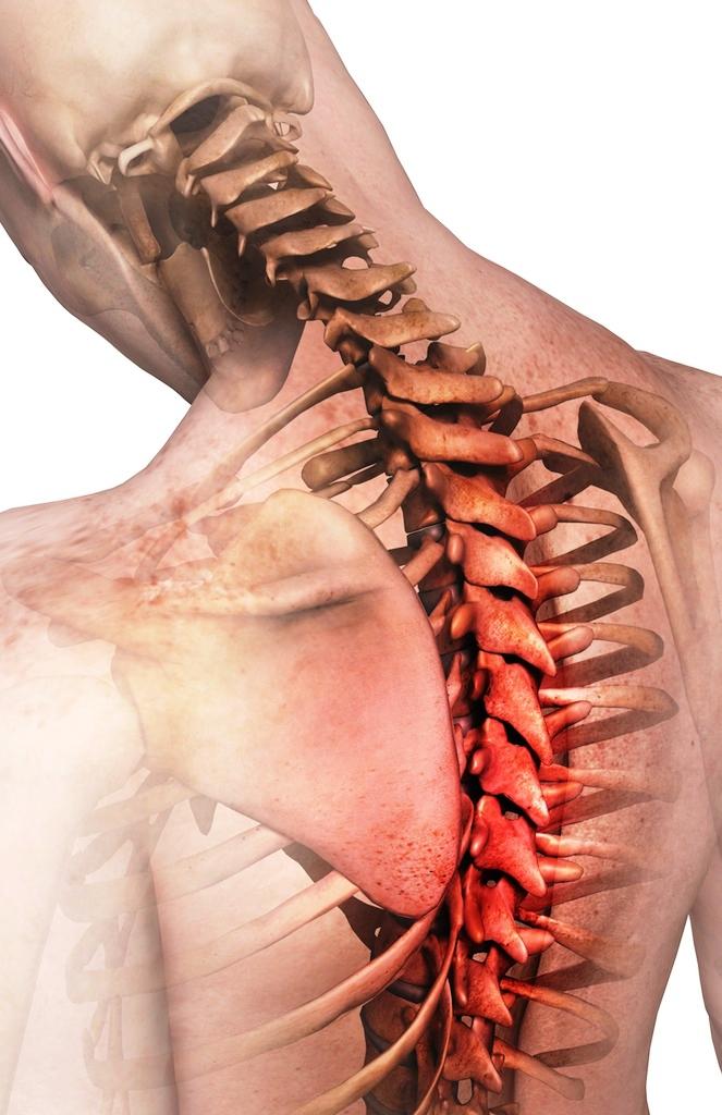 Обострение остеохондроза шейного и грудного отдела лечение