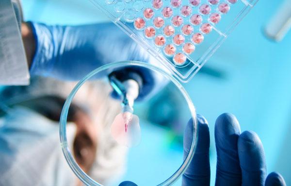 Калькулезный холецистит: что это такое, причины, симптомы, лечение, осложнения