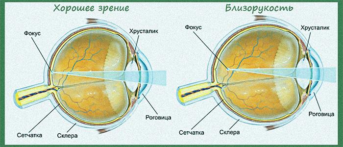 Лазерная коррекция остроты зрения