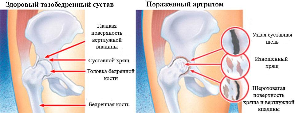 Артрит тазобедренного сустава у детей