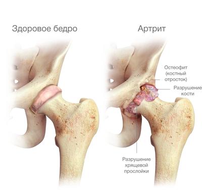 Артрит тазобедренного сустава у детей Травматология и ортопедия - 2017