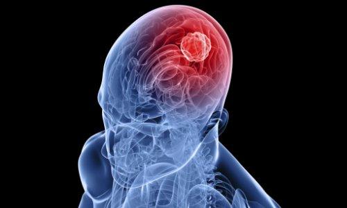 Причины и симптомы энцефалита
