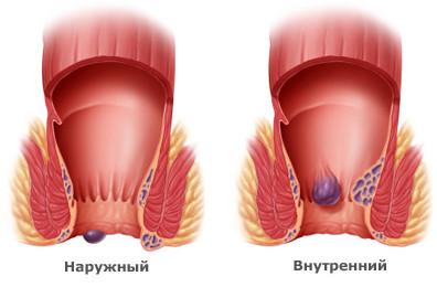 Наружный геморрой – лечение, симптомы и профилактика