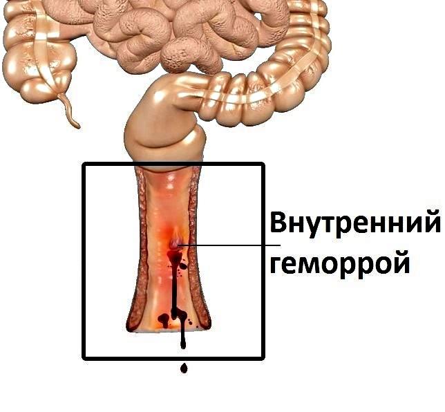Внутренний геморрой – симптомы, лечение, фото, первые признаки, стадии и причины