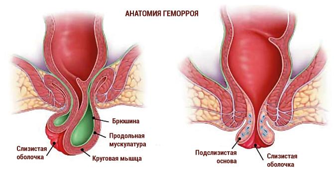 Геморрой – лечение в домашних условиях