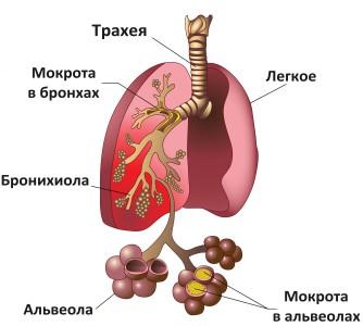 Пневмония — симптомы, признаки и причины