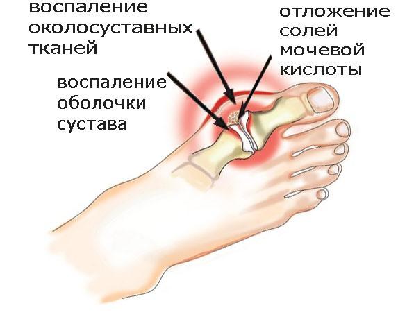 Подагра — симптомы, признаки и причины