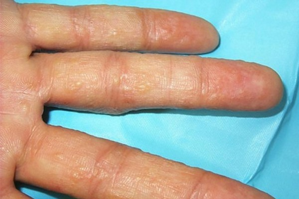 Дисгидротическая экзема на пальцах рук