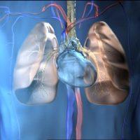 Жировая, воздушная, легочная и газовая эмболия