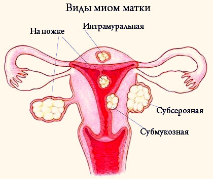 Эндометриоз, эндометрит и миома матки – в чем разница?