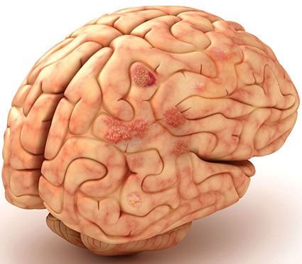 Что такое энцефалопатия?