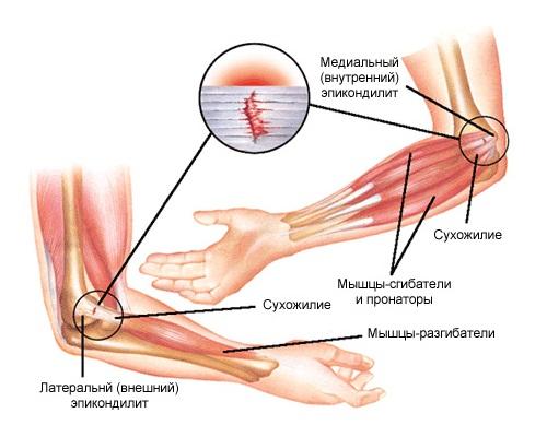 Локтевой эпикондилит (локтевого сустава)