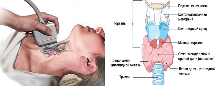 Ультразвуковые признаки заболеваний щитовидной железы