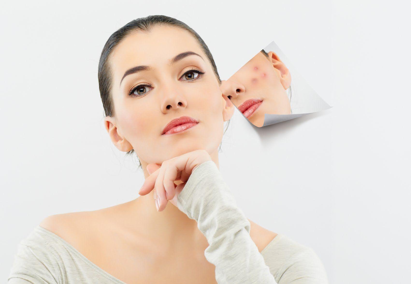 Лечение шрамов народными средствами
