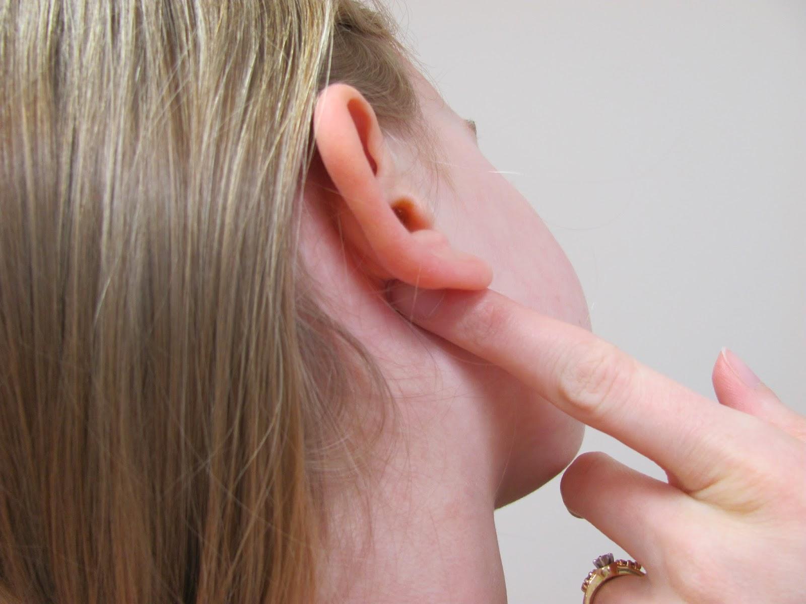 Причины и симптомы чириев, лечение и профилактика