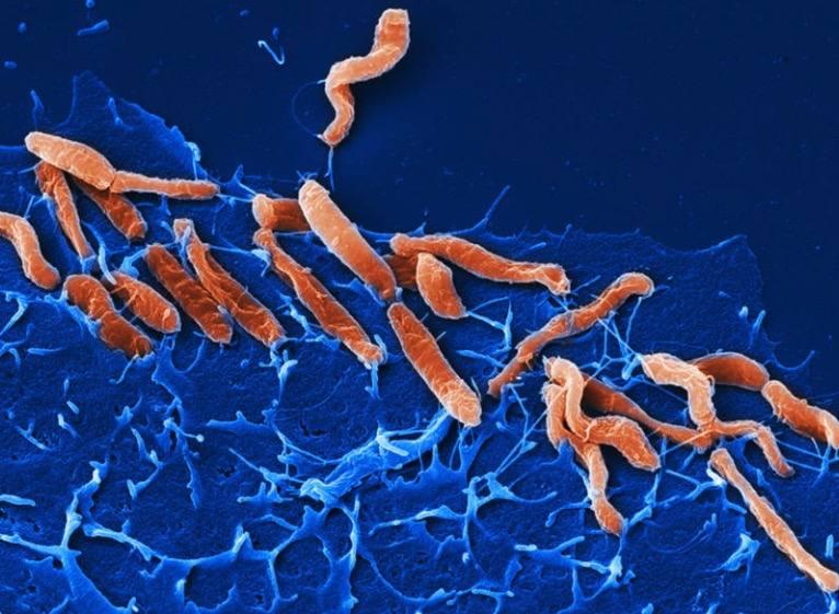 Причины, формы и симптомы хеликобактера пилори