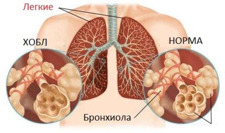 Причины, симптомы, стадии и диагностика болезни ХОБЛ