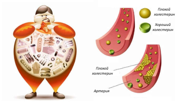 Как лечить повышенный холестерин?
