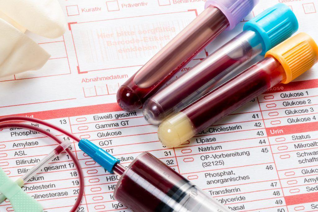22585 Как лечить повышенный холестерин?