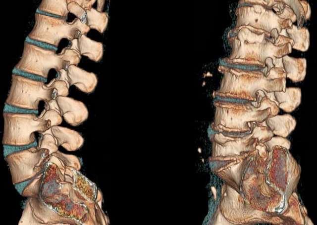 Симптомы и лечение грудного хондроза
