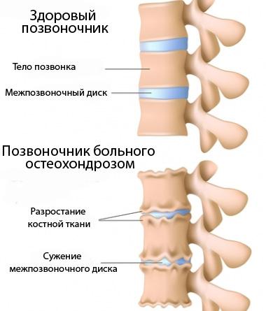 Симптомы и лечение поясничного хондроза