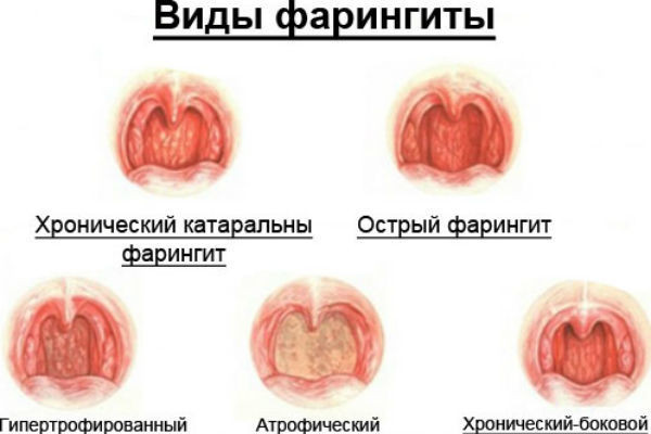 Хронический фарингит