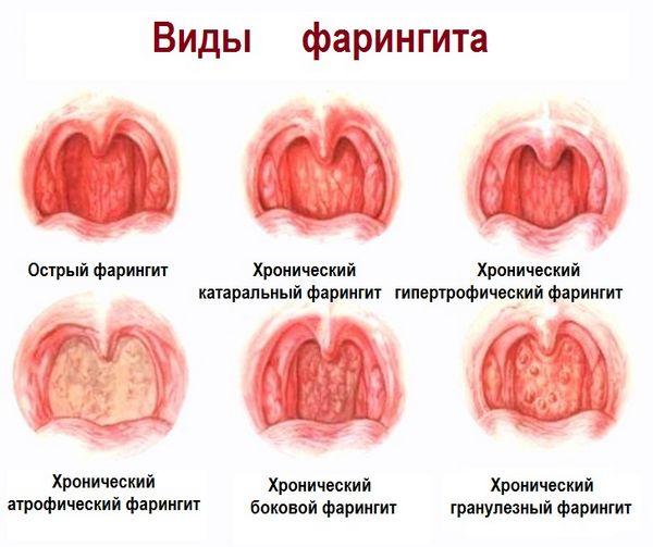 Стрептококковый фарингит